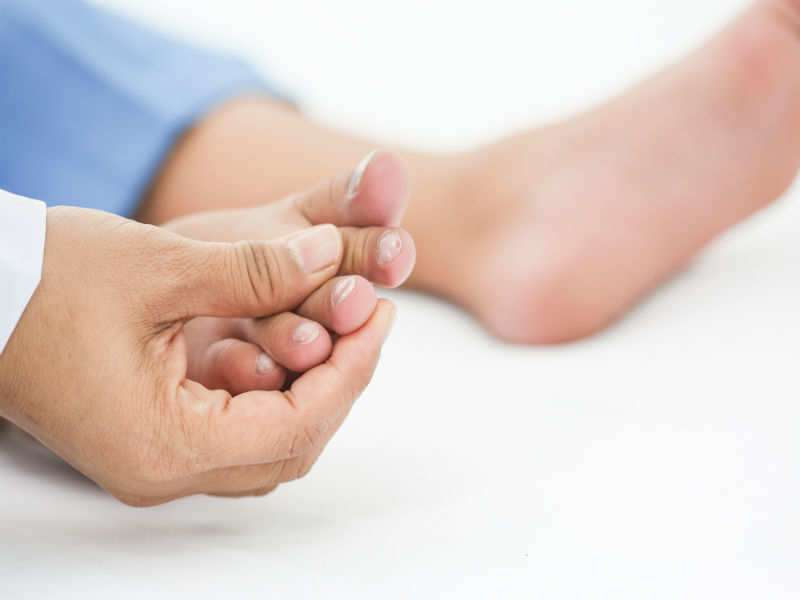 What your feet say about your health! | The Times of India