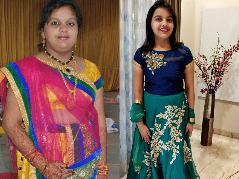 10 shocking weight loss transformations of 2018 that will