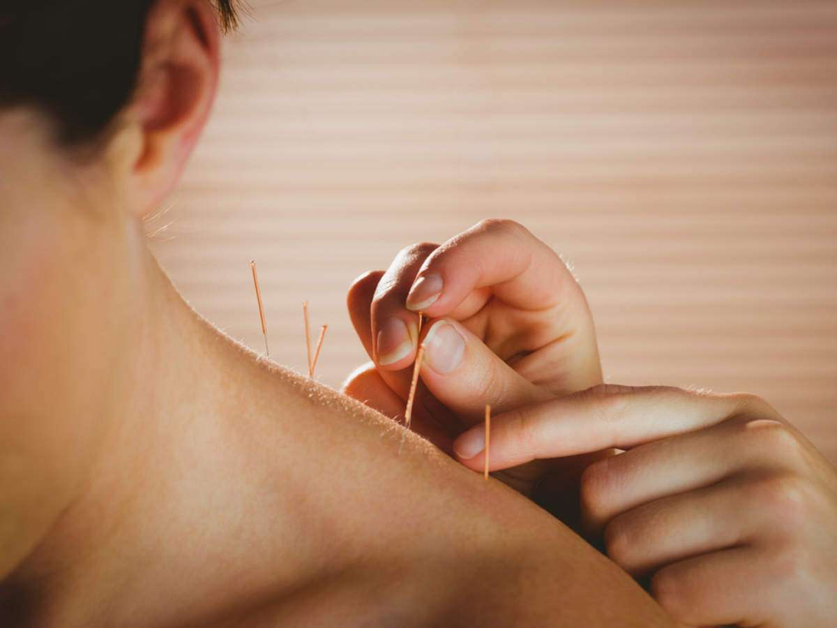Acupuncture's Side Effects: 5 Common Side Effects of Acupuncture ...